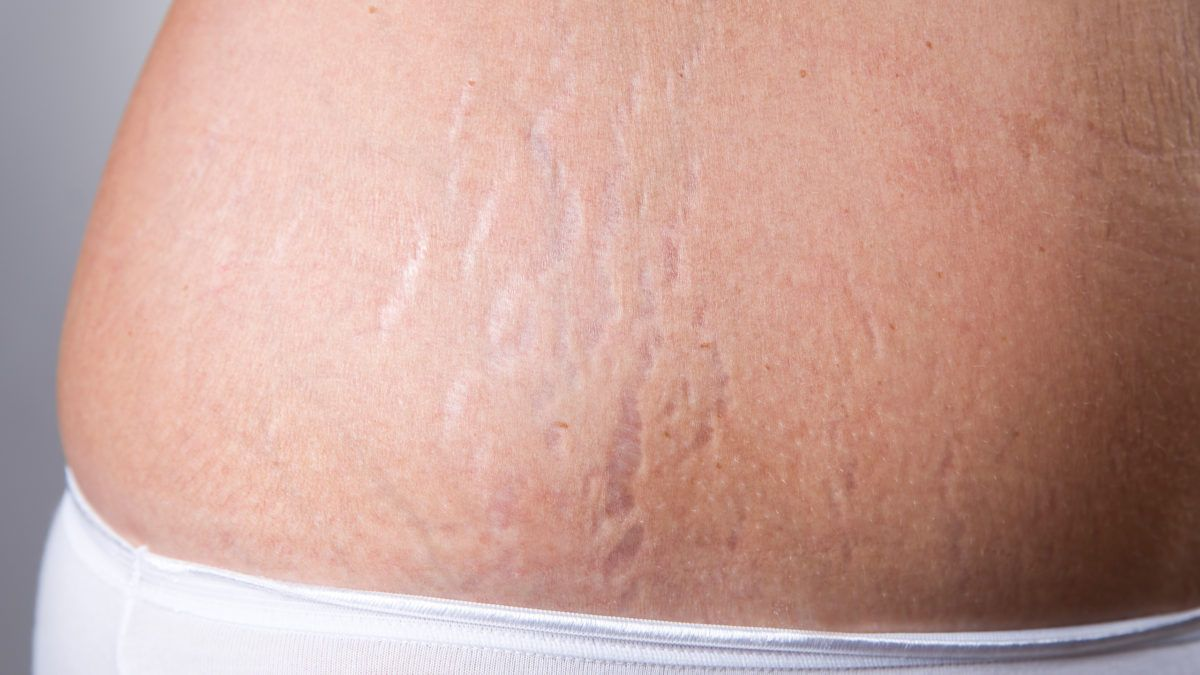 How To Clear Stretch Marks with Home Remedies
